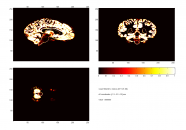 probability tissue map of gray matter