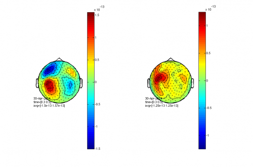 Figure 8; A comparison of event related fields from the axial gradiometers (left) and the planar gradient (right). The planar gradient was calculated using FT_MEGPLANAR and FT_COMBINEPLANAR.