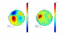 tutorial:eventrelatedaveraging:topoplot_axialplanar_3feb09_erf.png