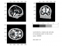 workshop:baci2017:mri_segmented_fem.png